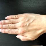 手の甲の血管が浮き出る原因や改善策は?ハンドベイン・老け手を改善